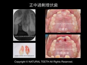 長崎 佐世保 歯科 予防 正中過剰埋伏歯