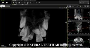JENORAY PAPAYA 3D Plus CT