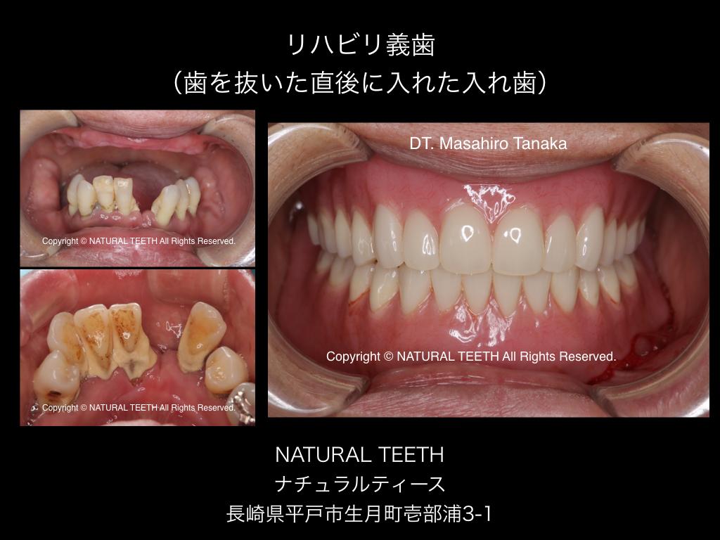 リハビリ義歯(入れ歯)抜歯即時義歯