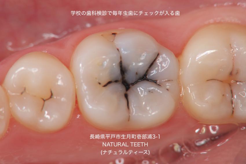 歯科検診 虫歯 予防 要観察歯 C