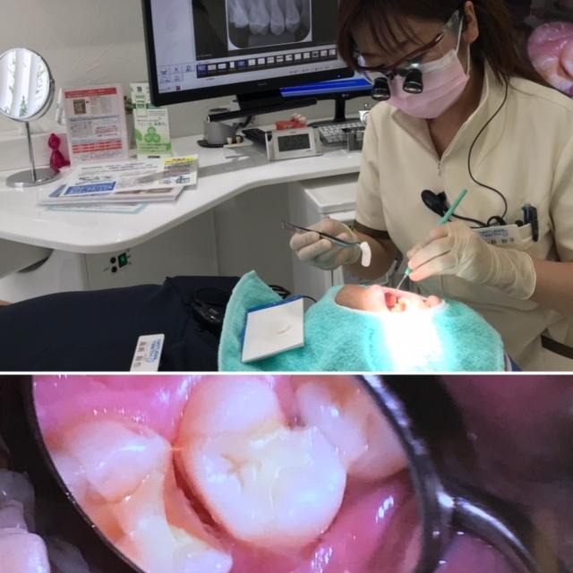 歯医者 痛い 治療 長崎 佐世保 平戸 虫歯
