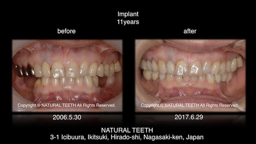 長崎 佐世保 平戸 松浦 インプラント 予防 歯科衛生士