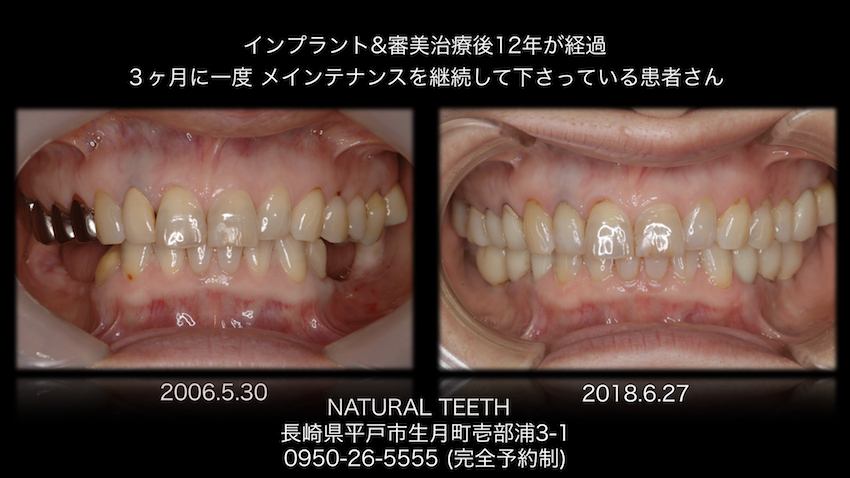 長崎 佐世保 平戸 佐々 松浦 歯科 歯医者 インプラント 入れ歯 予防 歯科衛生士