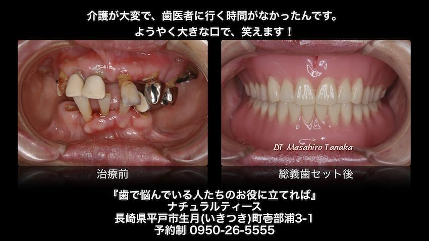 入れ歯 義歯 噛めない 痛い 長崎 佐世保 平戸 松浦 歯医者