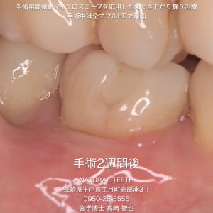 Instagrm 歯ぐき下がり蘇り治療.010