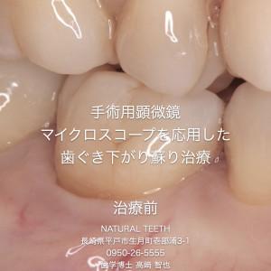 Instagrm 歯ぐき下がり蘇り治療.001