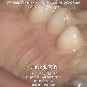 Instagrm 歯ぐき下がり蘇り治療.009